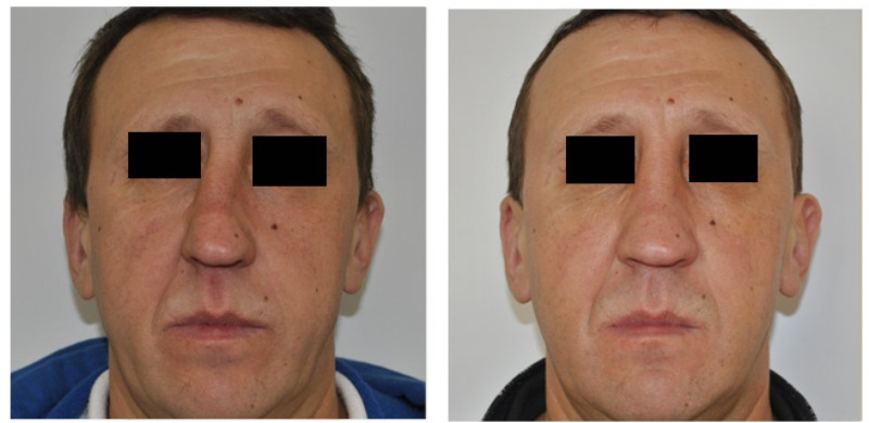 Септопластика носа: фото до и после