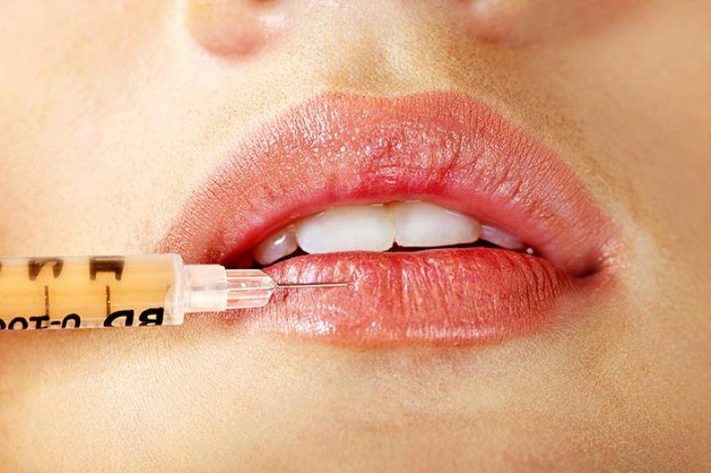 Проводится биоревитализация губ