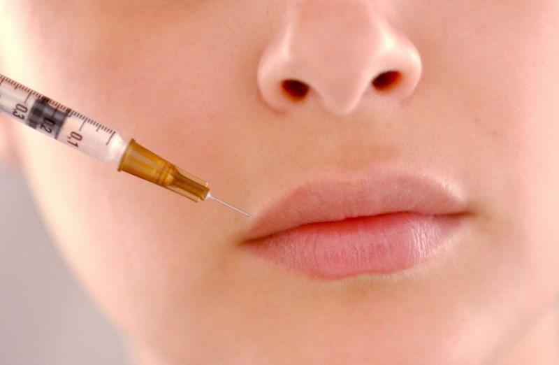 Проводится биоревитализация в области губ