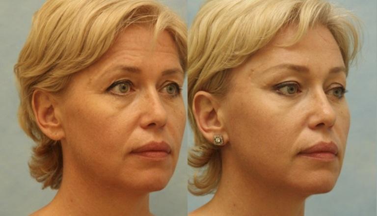Височный лифтинг: фото до и после