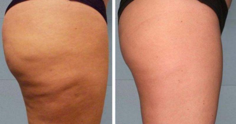Капсикам от целлюлита: фото до и после