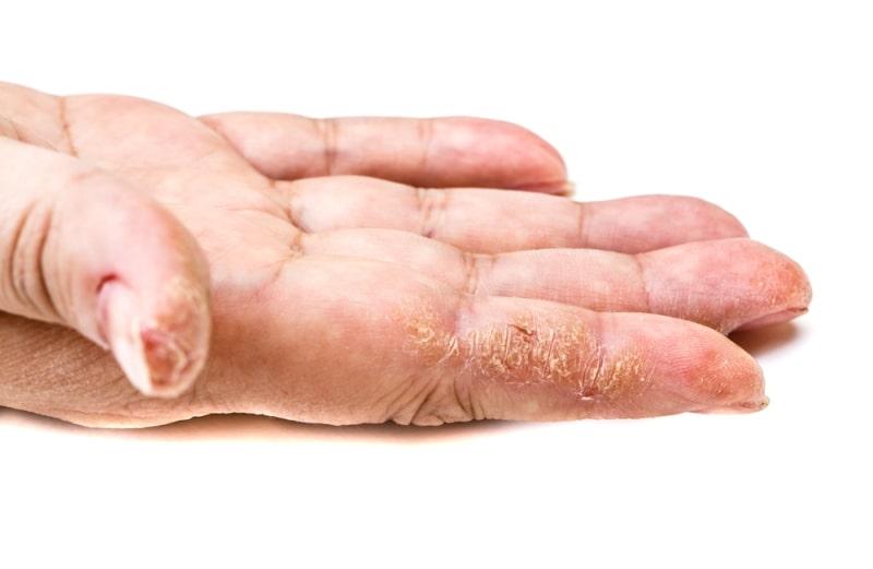 трещины на пальцах рук у женщины