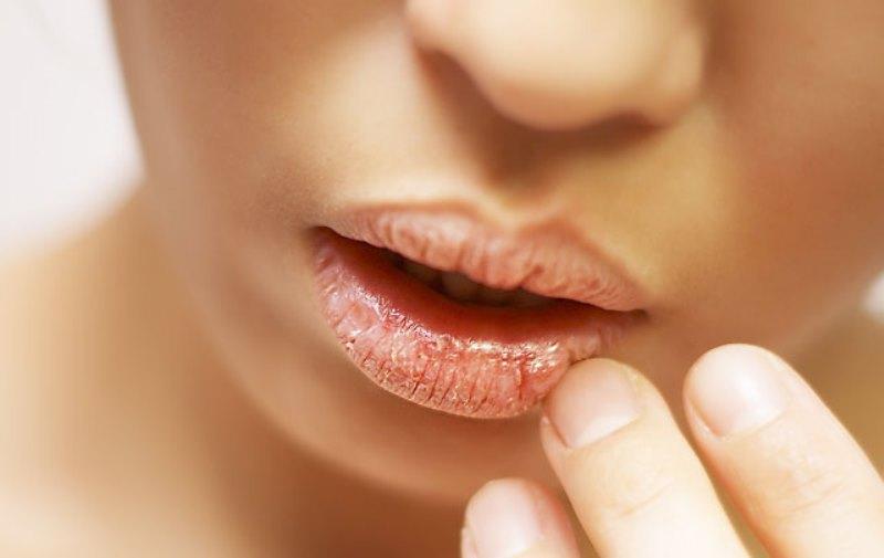 сухая кожа губ у девушки