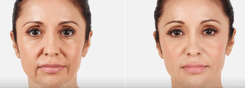 До и после коррекции морщин марионеток