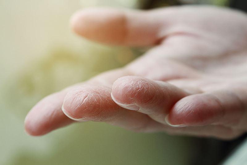 трещины на пальцах