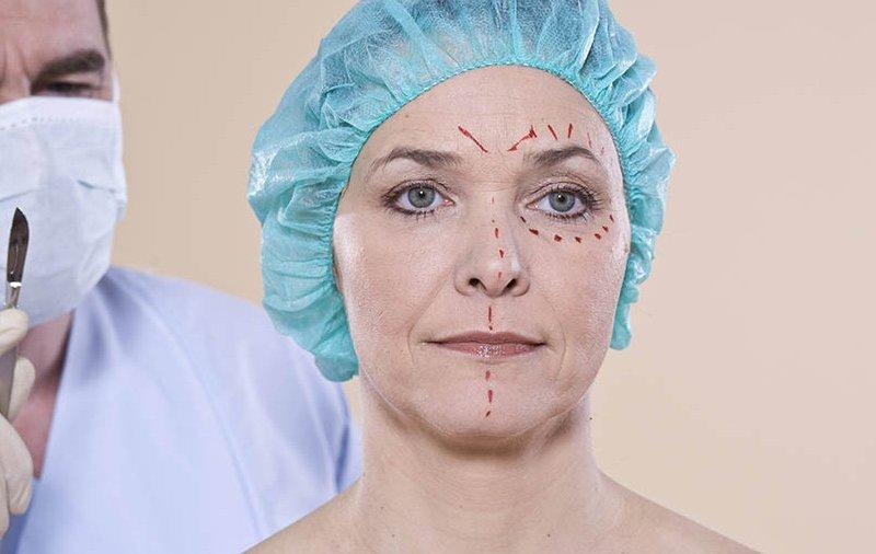 операция на лице