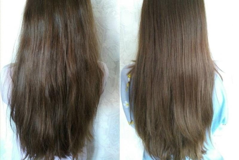 До и после филлеров для волос