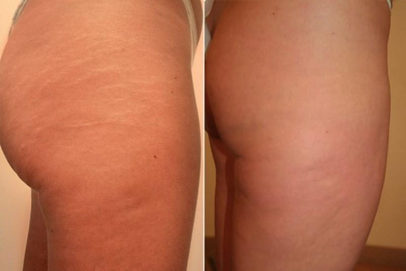 Фото до и после прессотерапии