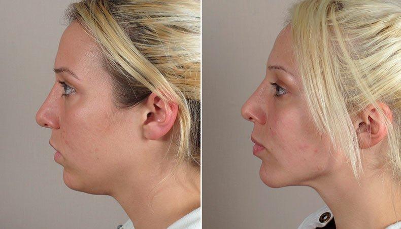 Фото до и после липосакции подбородка
