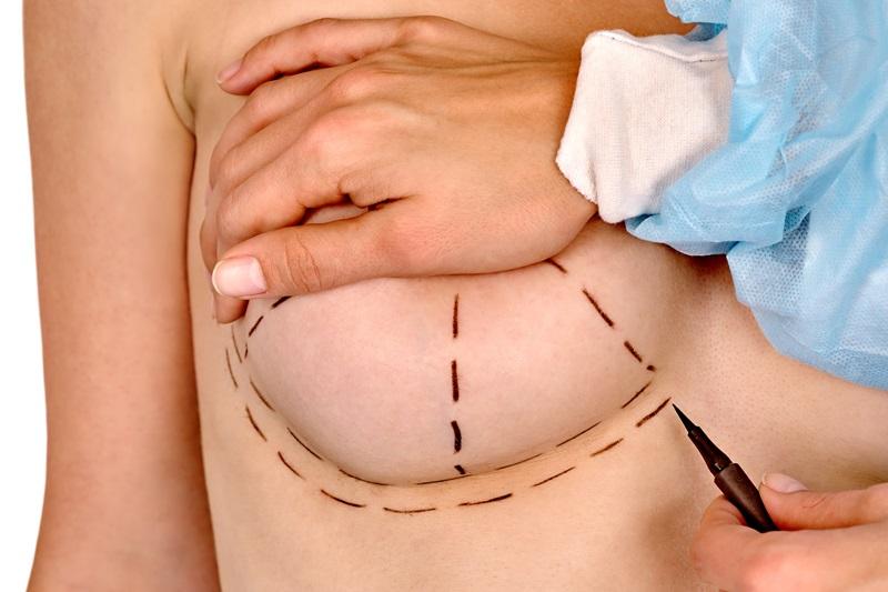 Подготовка к коррекции груди