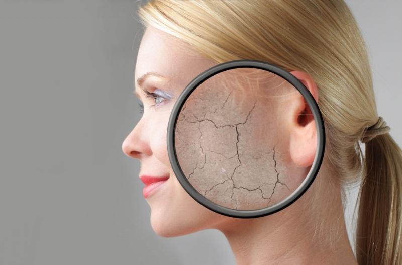 Шелушится кожа на лице под увеличительным стеклом
