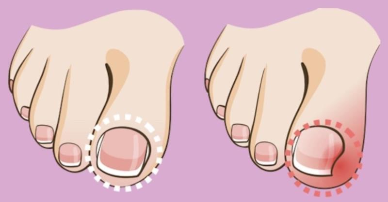 Вросший ноготь на ноге: лечение патологии