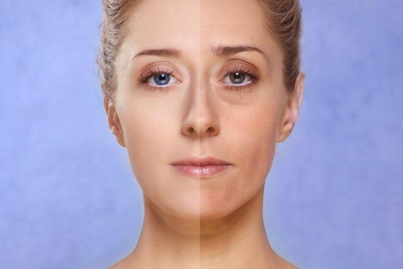 мешки под глазами: до и после