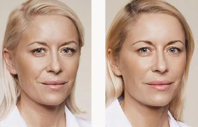 Биорепарация лица: фото до и после