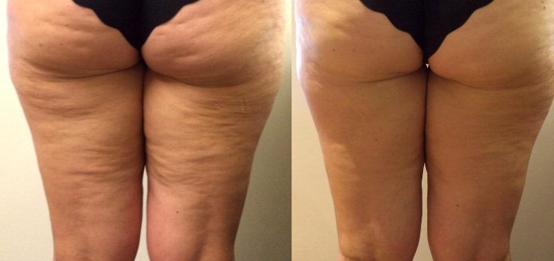 антицеллюлитный массаж: фото до и после