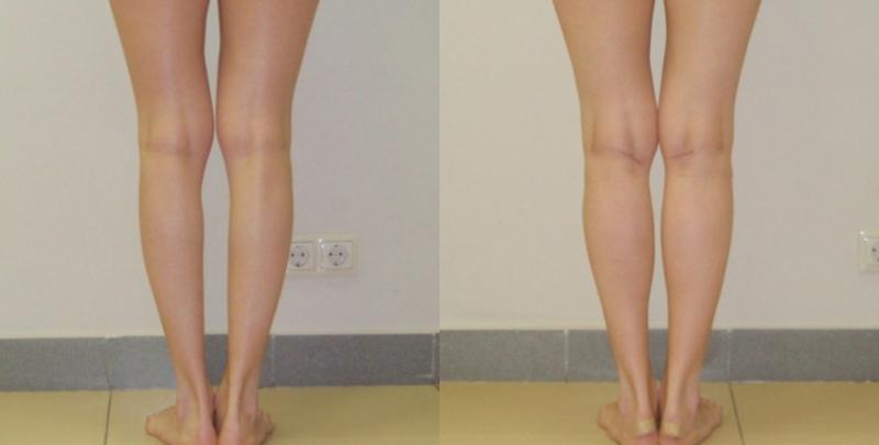 Фото до и после круропластики