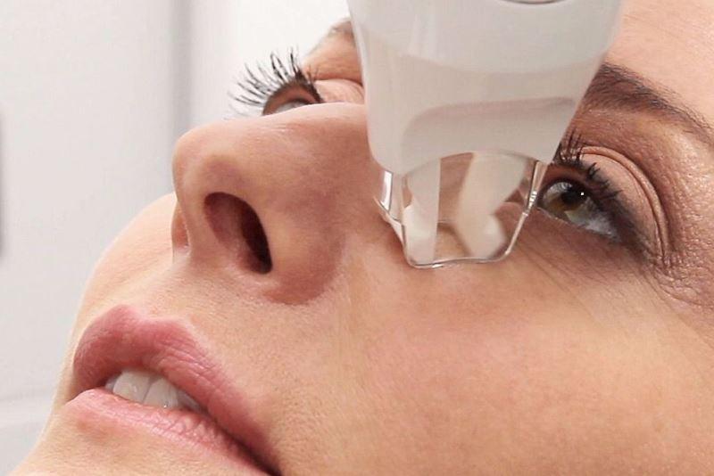 LPG-массаж области глаз