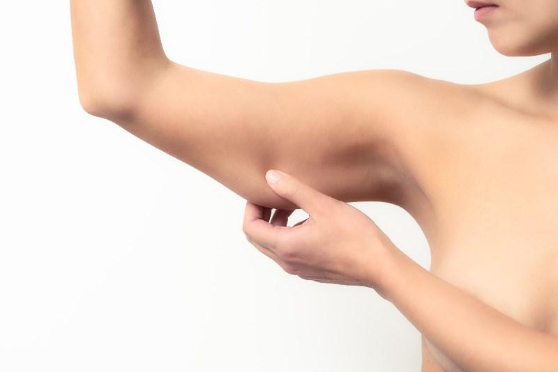Птоз кожи рук