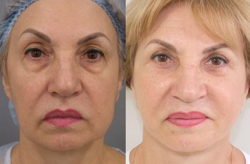 До и после лифтинга лица