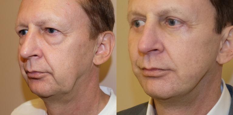 Фото до и после 3S-лифтинга