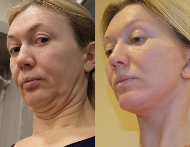 3S-лифтинг от Игоря Белого: фото до и после