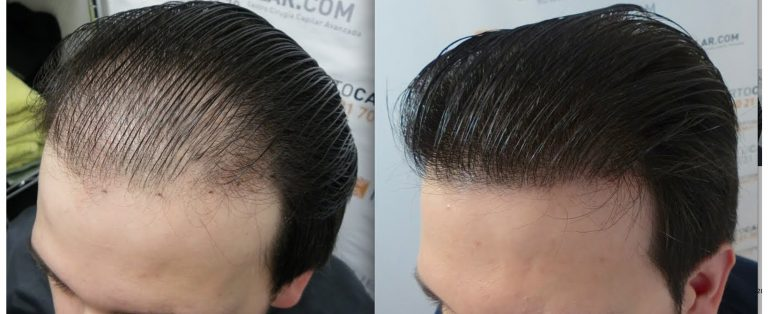 Пересадка волос на голове: до и после