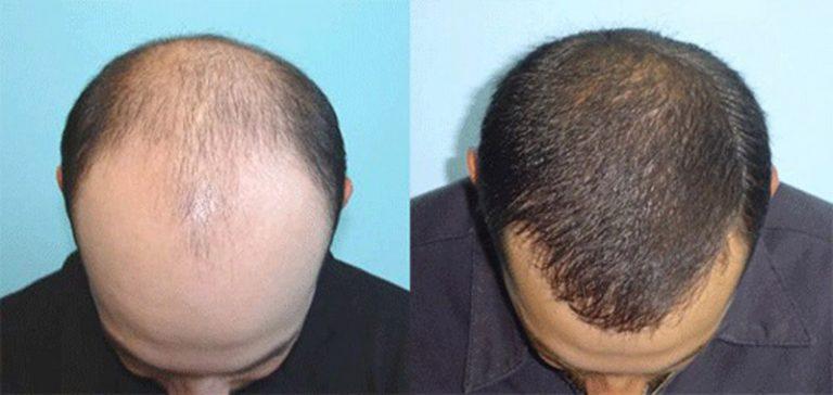 Пересадка волос на голове: фото до и после