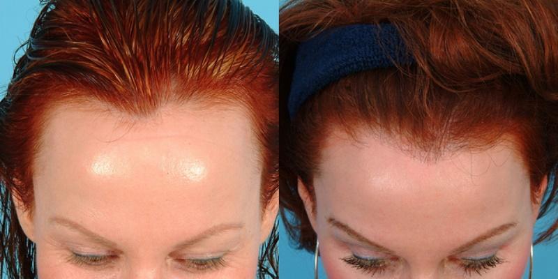Пересадка волос на голове у женщины