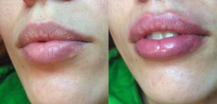 увеличение губ в Москве: до и после