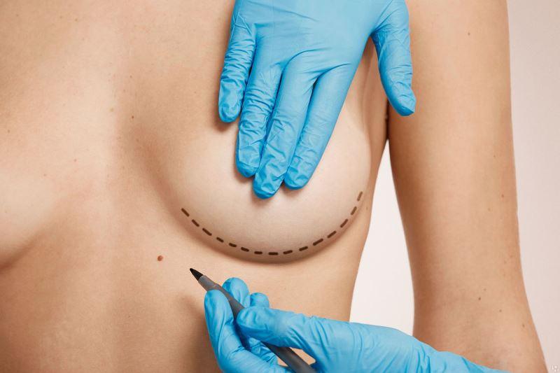 Подготовка к операции груди