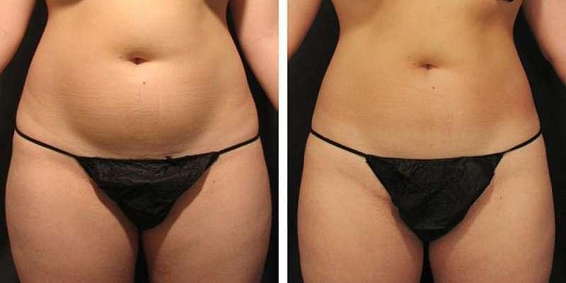 прессотерапия: что это такое на фото до и после