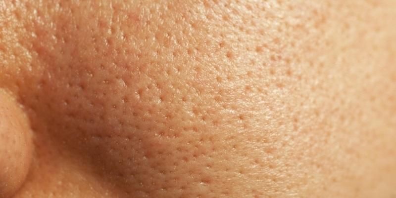 Расширенные поры на лице в области щек