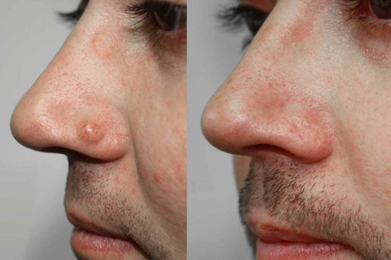 Базалиома носа до и после