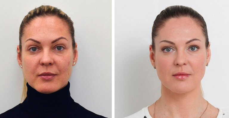 Безинъекционная мезотерапия лица: фото до и после