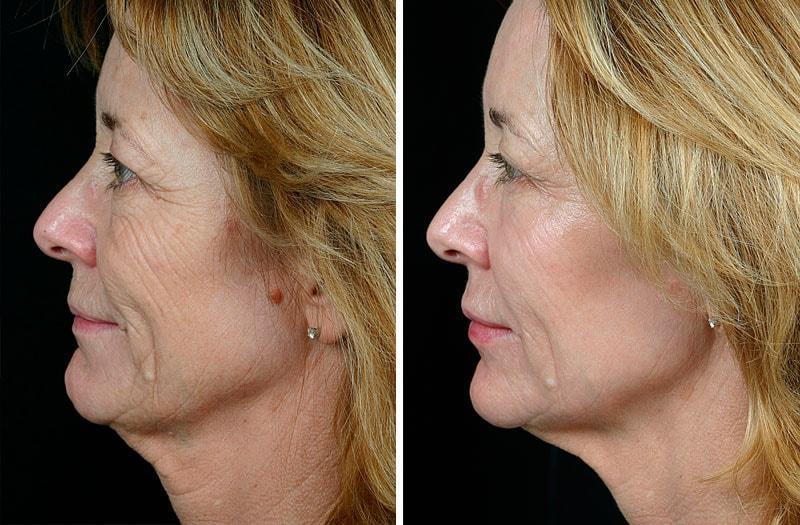 Термаж лица: фото до и после