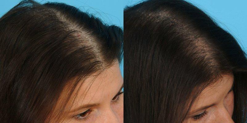Мезотерапия для волос: до и после
