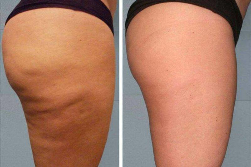 Миостимуляция тела: фото до и после