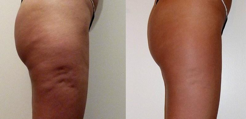 Миостимуляция тела: до и после