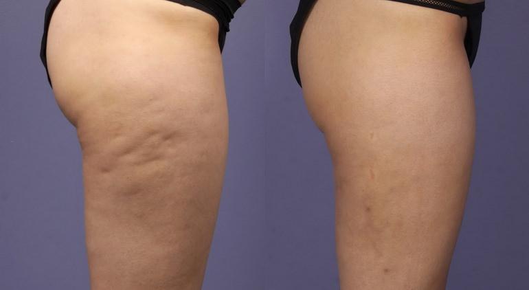 Озонотерапия для похудения: фото до и после