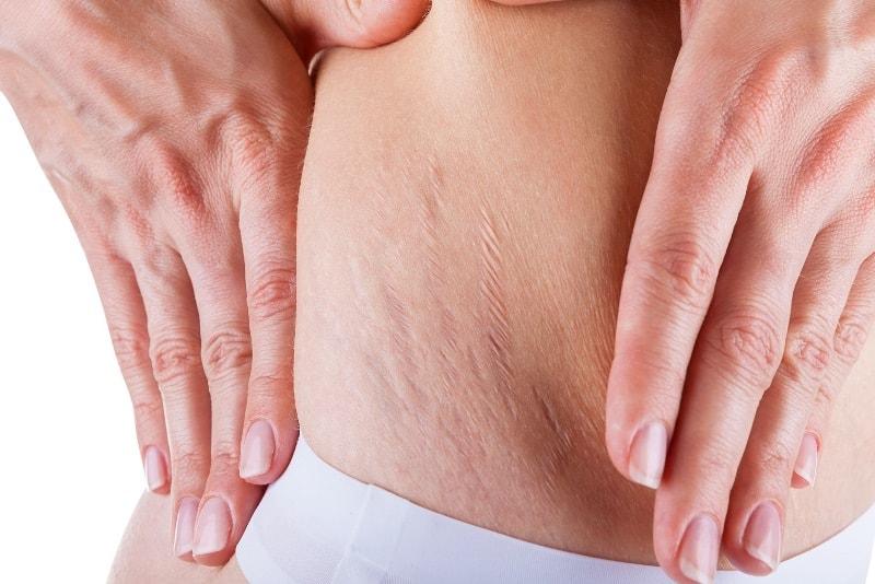 Растяжки на теле у девушки