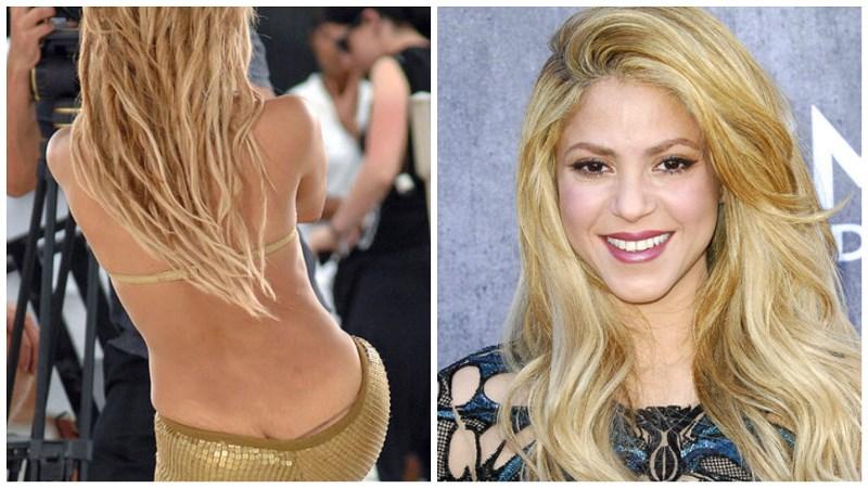 Шакира и растяжки на теле