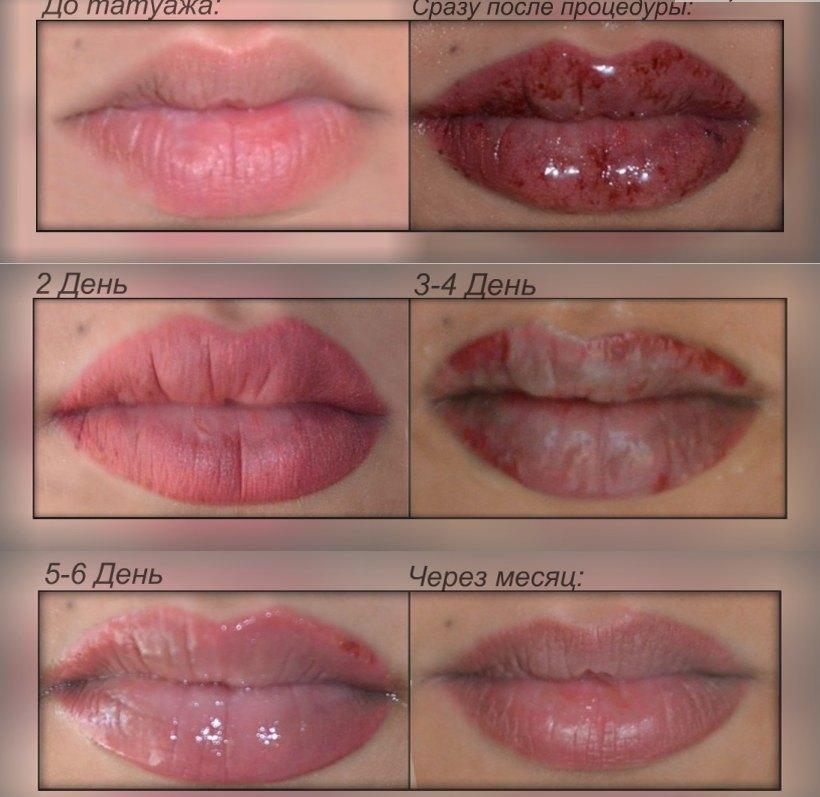 Заживление после перманентного макияжа губ