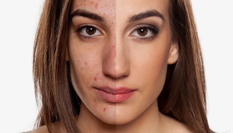 Проблемная кожа лица: до и после