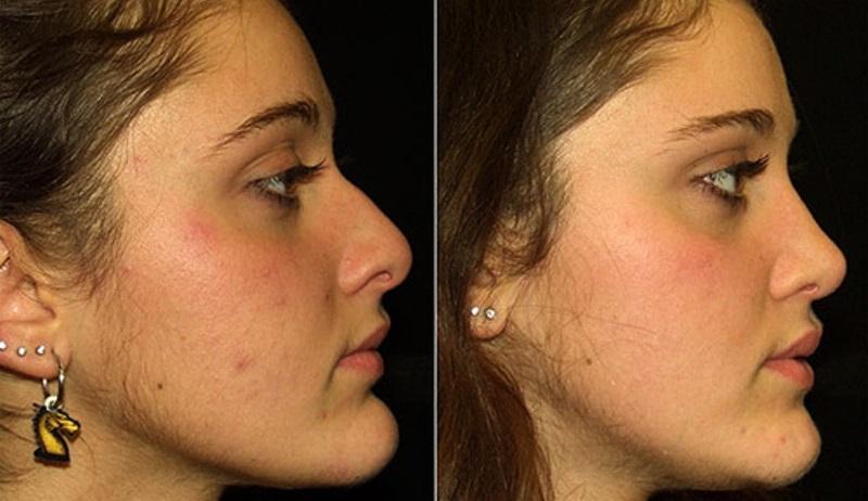 Уменьшение подбородка: фото до и после