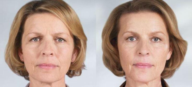 Тейпирование лица: фото до и после
