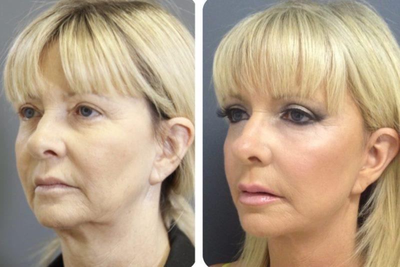 Брыли на лице: фото до и после