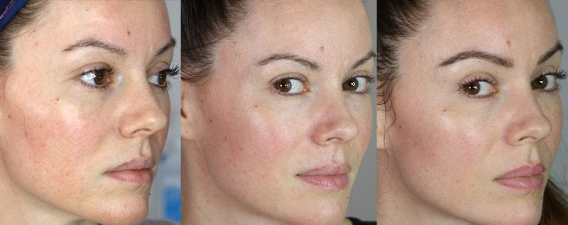 Микронидлинг лица: до и после