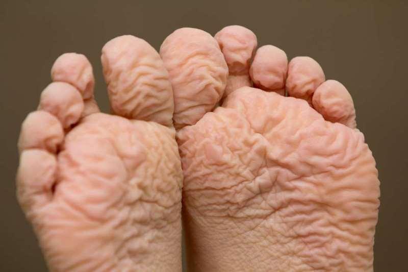 Матерация кожи на ногах