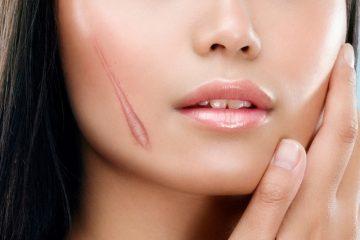 У девушки шрам на лице