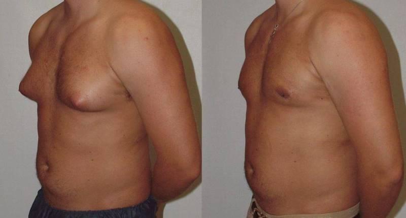 Гинекомастия у мужчин: до и после операции